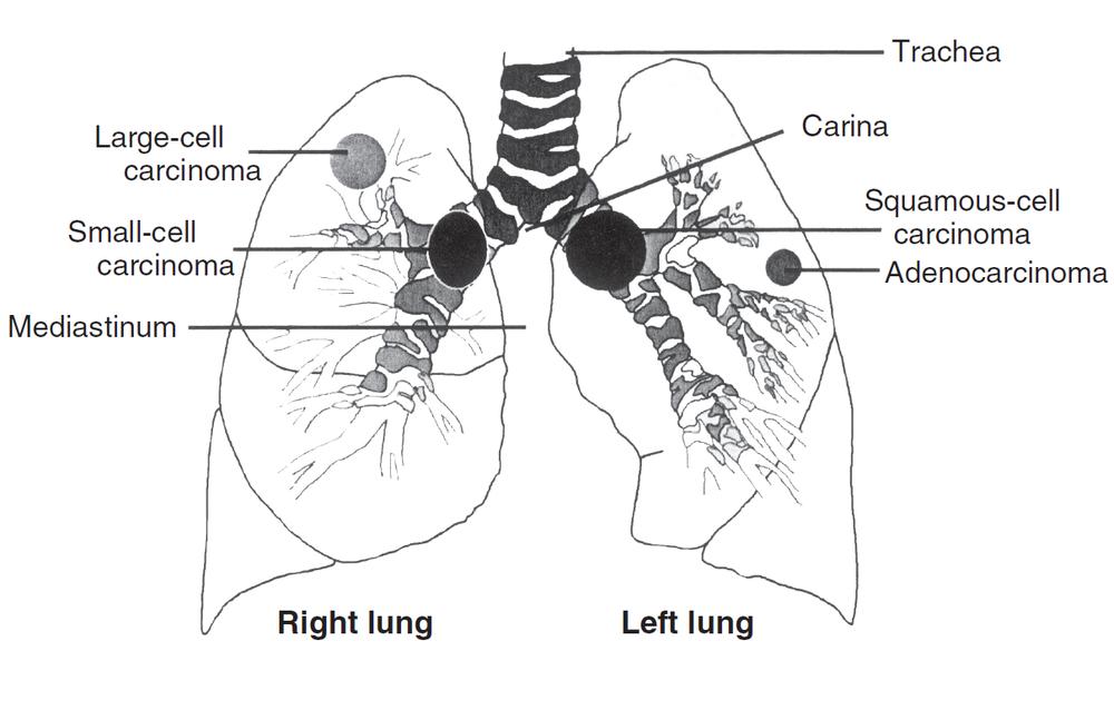 Lung Cancer (例子) - MindMeister
