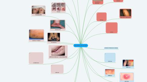 Mind Map: LESIONES  DE LA PIEL
