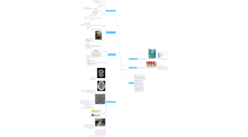 Mind Map: Cerebellar stroke