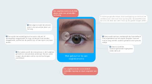 Mind Map: Wat gebeurt er bij een ooglidcorrectie