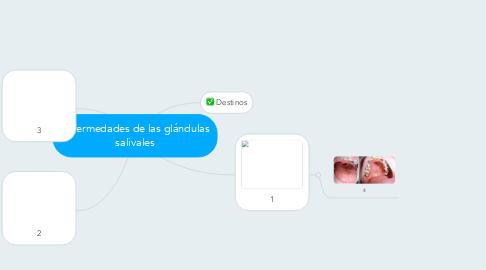 Mind Map: Enfermedades de las glándulas salivales