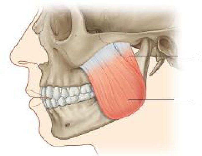 Musculos Masticadores y Aponeurosis (Exemple) - MindMeister