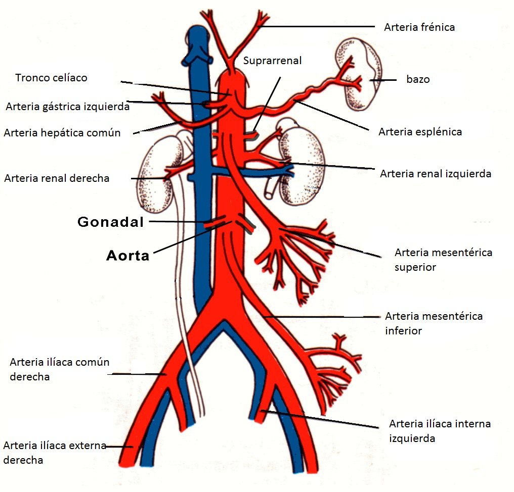 Aorta Abdominal (Ejemplo) - MindMeister